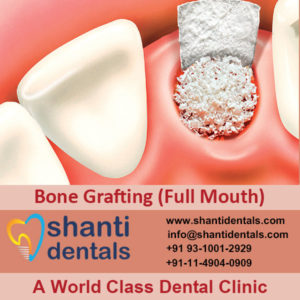 Repair Bone Fractures with Bone Grafting (full Mouth) Services in Rohini, Delhi