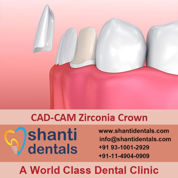 High Quality CAD-CAM Zirconia Crown Services in Rohini, Delhi
