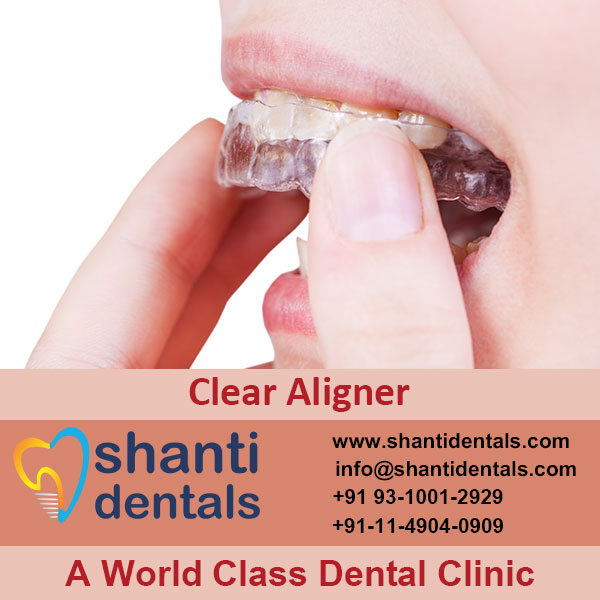 High Quality and Perfect Fit Clear Aligner in Rohini, Delhi