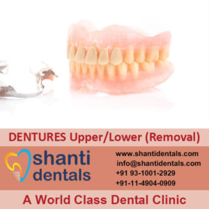 Complete Loss of all Permanent Teeth with Full Dentures (Removale) Service in Rohini, Delhi