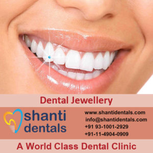 Best Quality Dental Jewellery in Rohini, Delhi