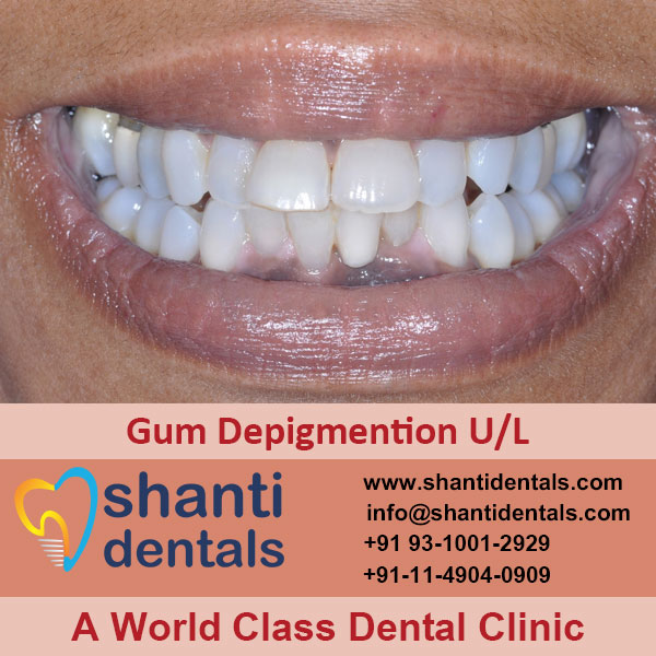 Gum Depigmention U/L Service in Rohini, Delhi