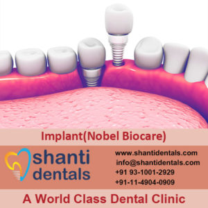 High Quality Dental Implant (Nobel Biocare) Services in Rohini, Delhi