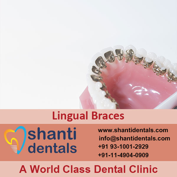 High Quality and Perfect Fit Lingual Braces in Rohini, Delhi