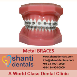 High Quality and Perfect Fit Metal Braces in Rohini, Delhi