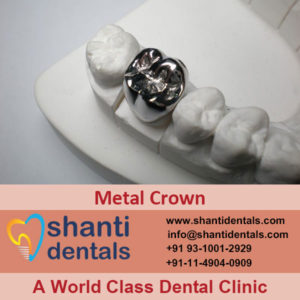 High Quality Metal Crown for Dental Care in Rohini, Delhi