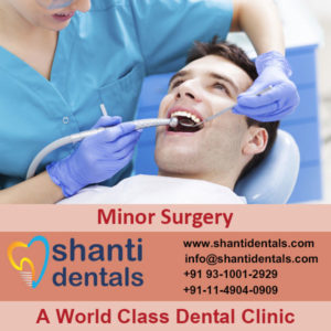 World Class Dental Minor Surgery with Advanced Technology in Rohini, Delhi