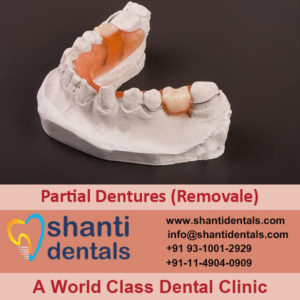 Best Quality and Perfect Fit Partial Dentures (Removale) in Rohini, Delhi
