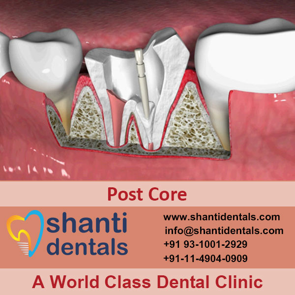 Safe Your Weakened Tooth with Dental Post Core Services in Rohini, Delhi