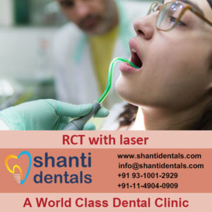 High Quality Root Canal Treatment with Laser Services in Rohini, Delhi