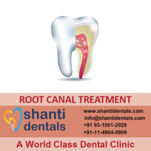 High Quality Re Root Canal Treatment Services with Latest Advanced Technology in Rohini, Delhi