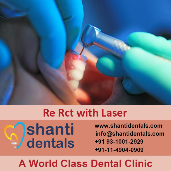 High Quality Root Canal Treatment Services with Latest Advanced Technology in Rohini, Delhi