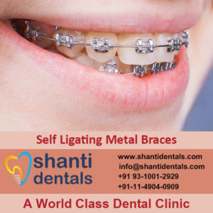 High Quality and Perfect Fit Self Ligating Metal Braces in Rohini, Delhi