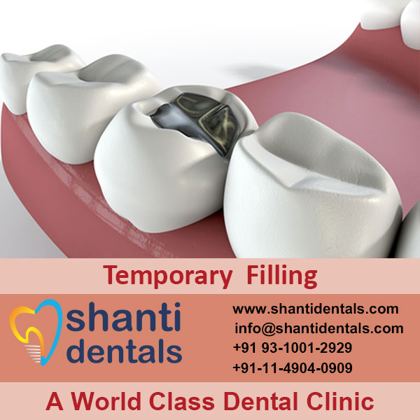 Best Quality Dental Temporary Filling Services in Rohini, Delhi