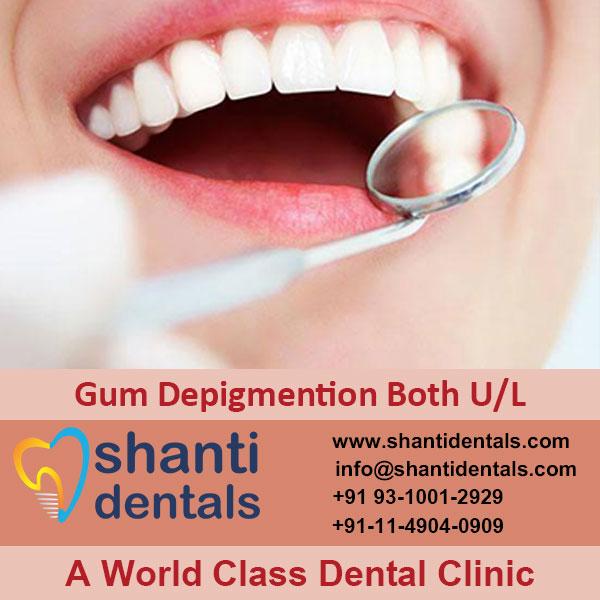 Gum Depigmention Both U/L Service in Rohini, Delhi