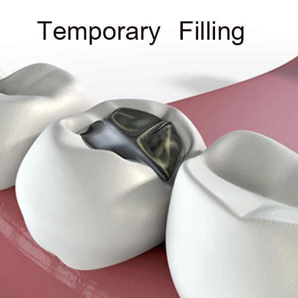 Temporary Filling