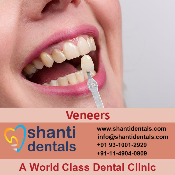 Protect Tooth's Surface from Damage with Veneers Services in Rohini, Delhi