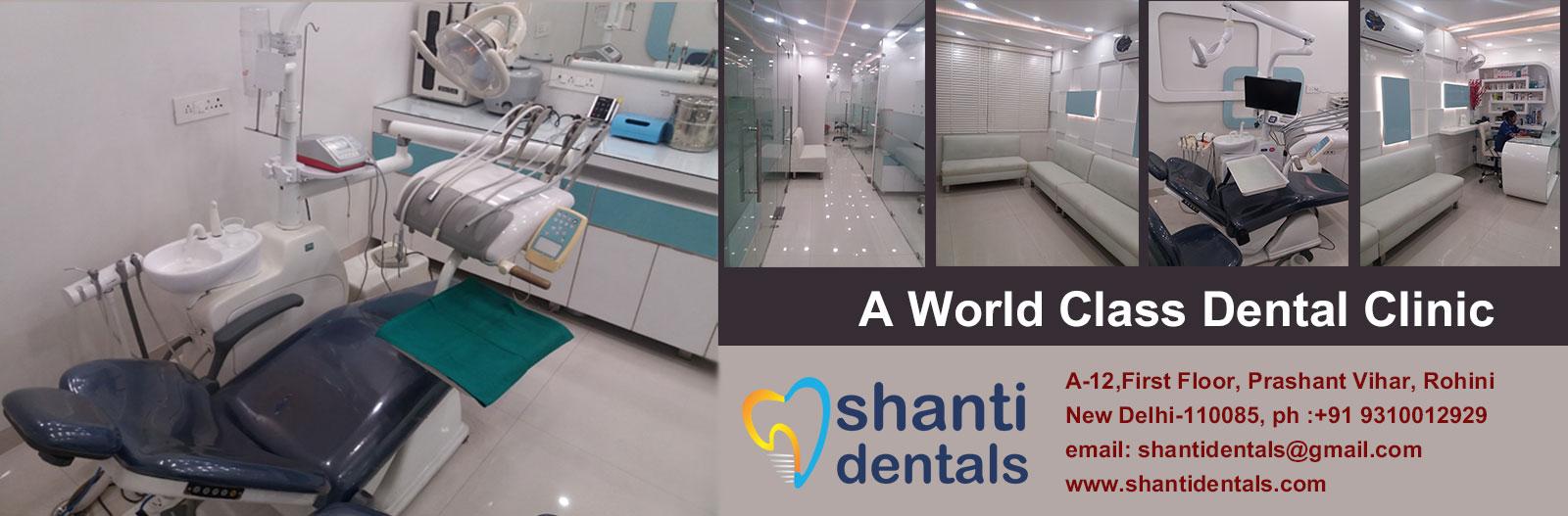 Shanti Dentals Banner-5