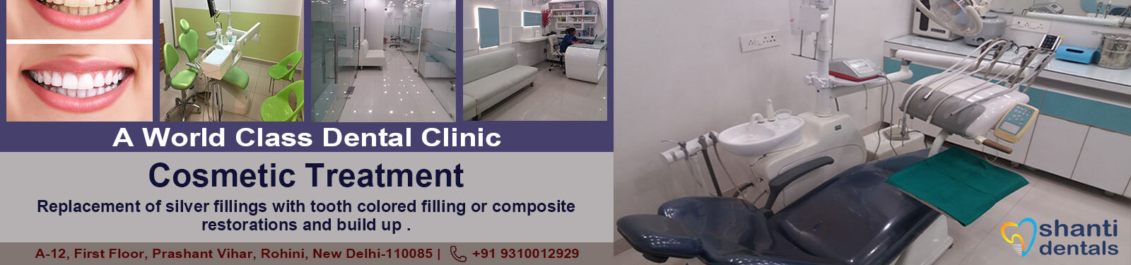 Cosmetic Treatment in Rohini Delhi by Shanti Dentals