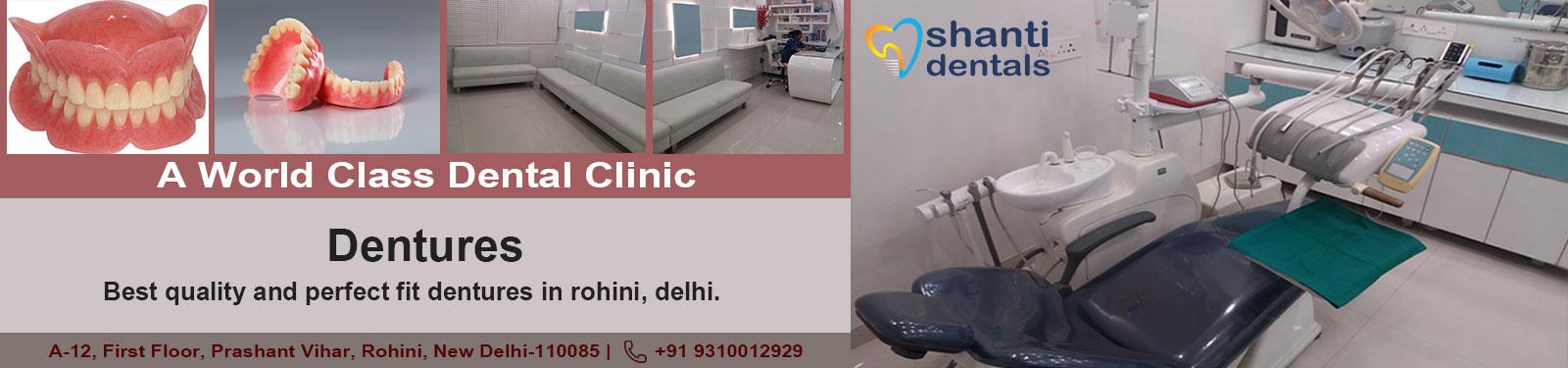 Dentures Care in Rohini Delhi By Shanti Dentals