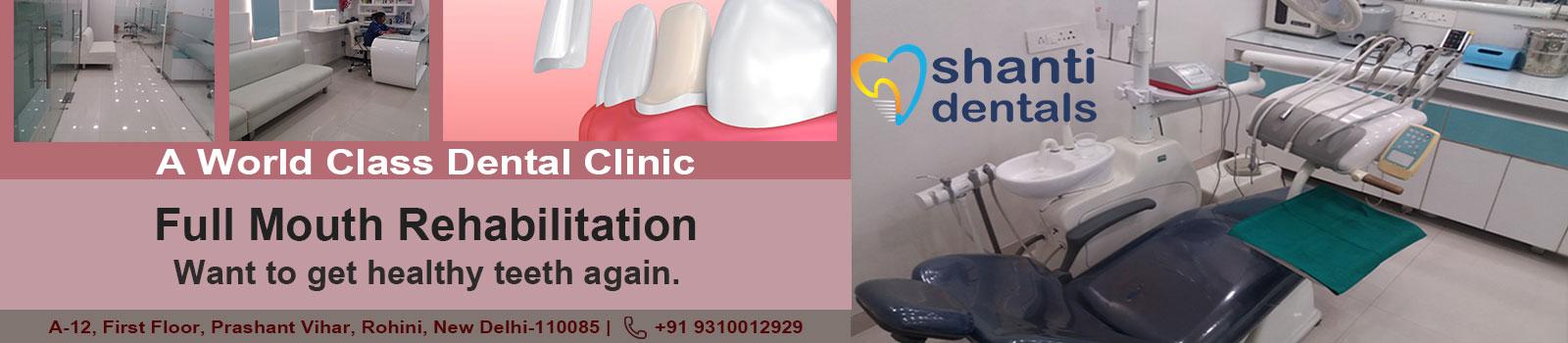 Full Mouth Rehabilitation Treatment in Rohini Delhi by Shanti Dentals