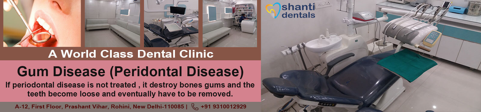 Gum Disease Peridontal Disease Treatment in Rohini Delhi by Shanti Dentals
