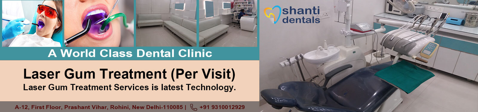 Laser Gum Treatment Per Visit Treatment in Rohini Delhi by Shanti Dentals