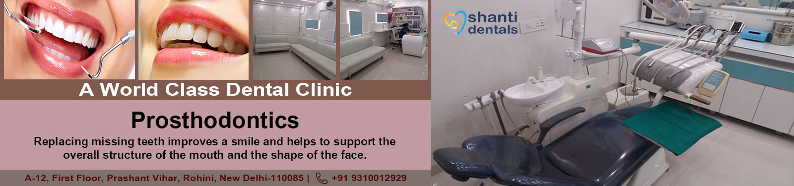 prosthodontics Care in Rohini Delhi by Shanti Dentals