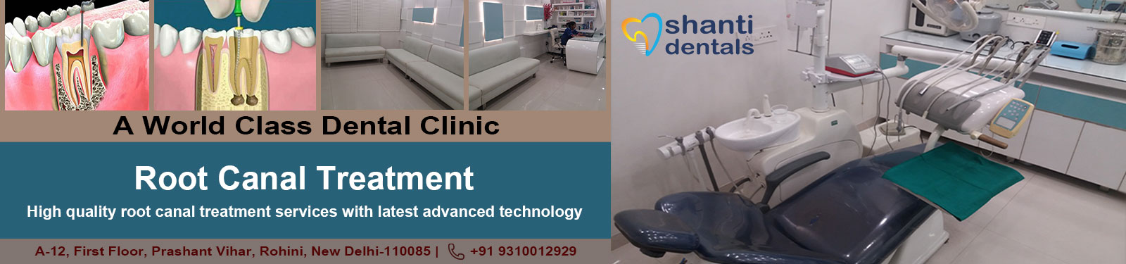 Root Canal Treatment in Rohini Delhi by Shanti Dentals