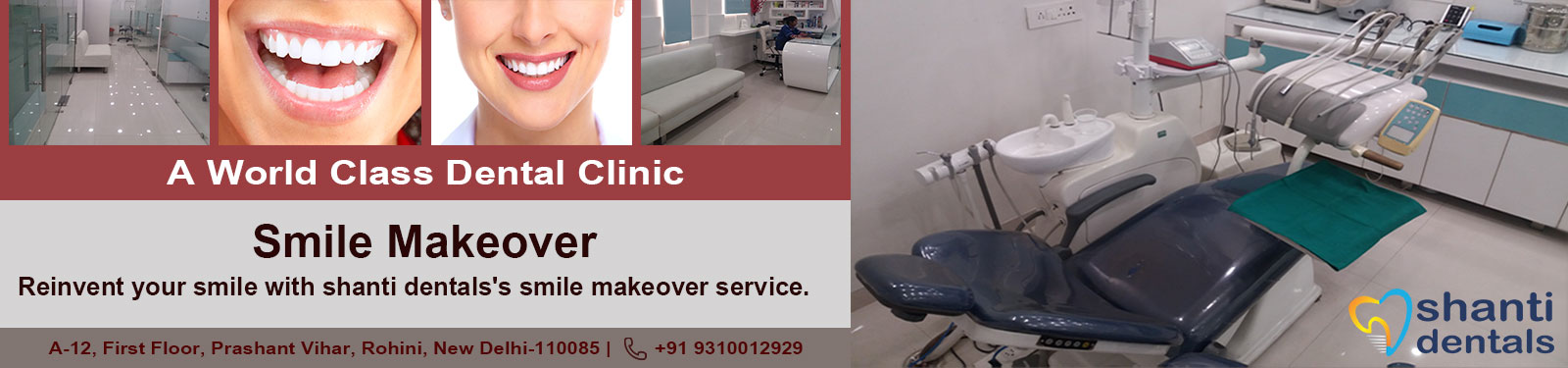 Smile Makeover Care in Rohini Delhi by Shanti Dentals