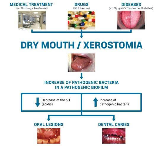 Ultimate Facts About Oral Health in Dry Mouth