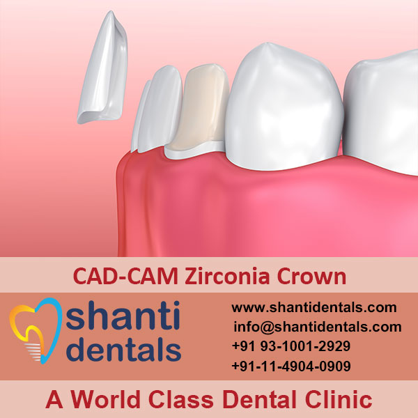 High Quality CAD-CAM Zirconia Crown Services in Rohini, Delhi