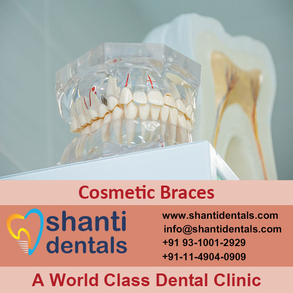 High Quality and Perfect Fit Cosmetic Braces in Rohini, Delhi