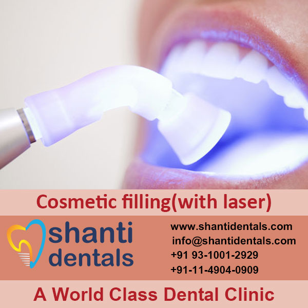 Improve the Appearance of Teeth with Cosmetic Filling with Laser Services in Rohini, Delhi