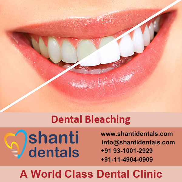 High Quality Dental Bleaching Service with Latest Advanced Technology in Rohini, Delhi