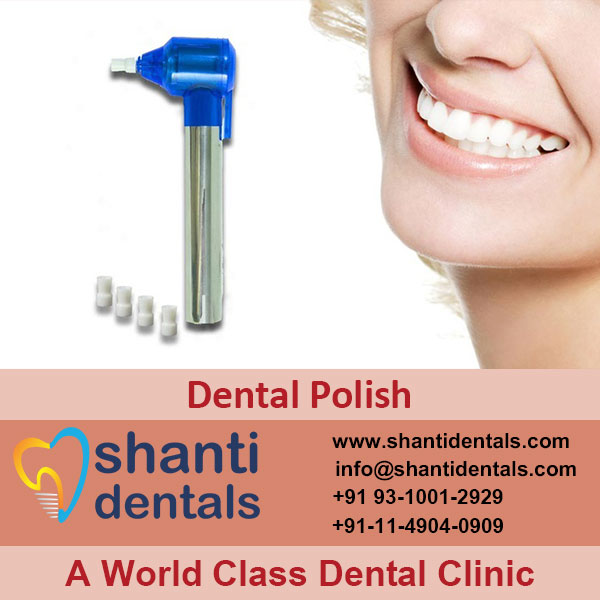 High Quality Dental Polish Service with Latest Advanced Technology in Rohini, Delhi