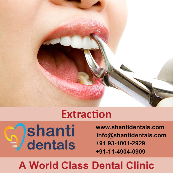 Repair Broken or Damaged Teeth with Dental Extraction Services in Rohini, Delhi