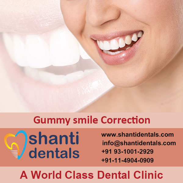 Remove Excess Gum Tissue with Gummy Smile Correction Service in Rohini, Delhi