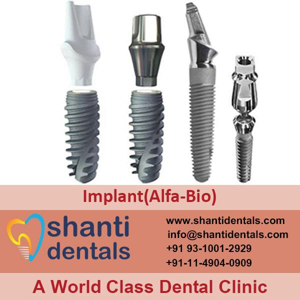 High Quality Dental Implant (Alfa-Bio) Services in Rohini, Delhi