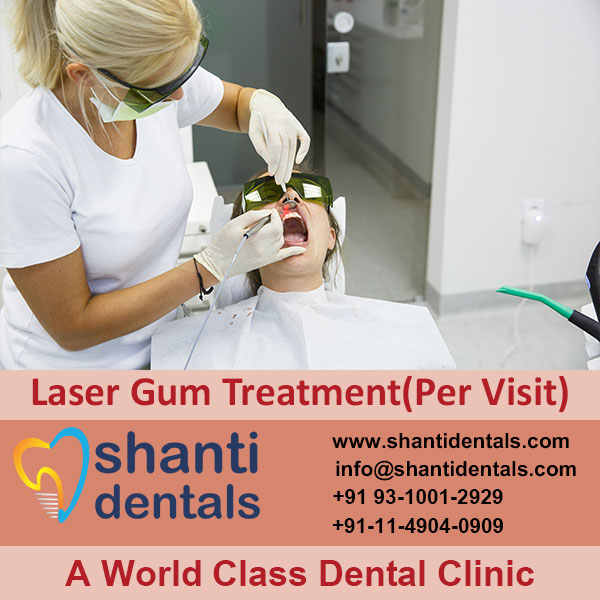 Laser Gum Treatment Services with Advanced Technology in Rohini, Delhi