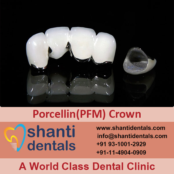 Restore Shape & Size of Your Teeth with Porcellin Crown Services in Rohini, Delhi