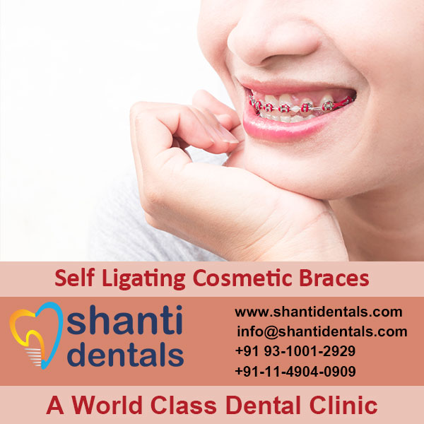 High Quality and Perfect Fit Self Ligating Cosmetic Braces in Rohini, Delhi