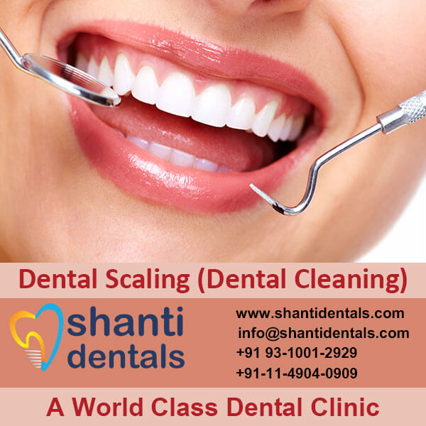 Dental Scaling (Dental Cleaning)