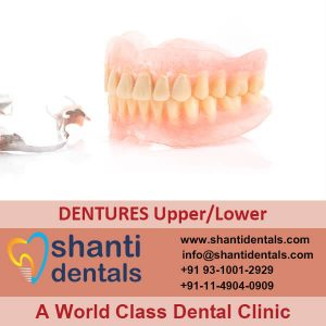 What are Dentures - Different Types of Dentures - shanti dentals
