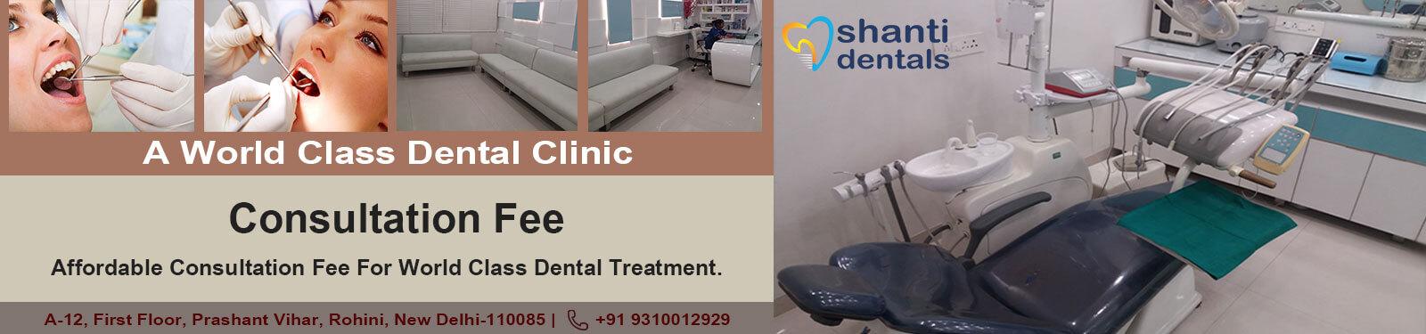 Consultation Fee Shanti Dentals Rohini Delhi