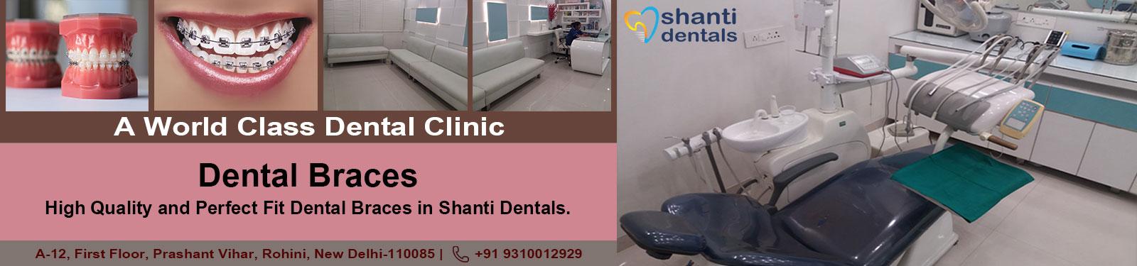 Dental Braces Care in Rohini Delhi By Shanti Dentals