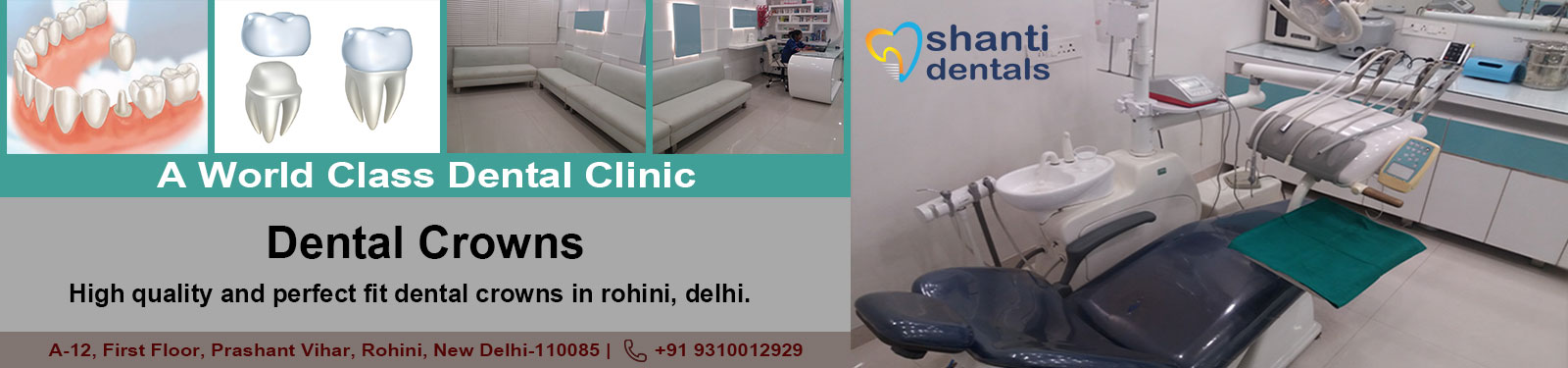 Dental Crowns Treatment-in Rohini Delhi By Shanti Dentals