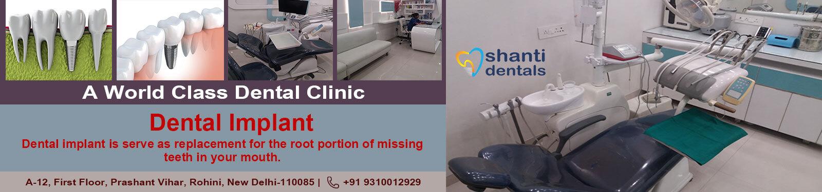 Dental Implant Care in Rohini Delhi by Shanti Dentals
