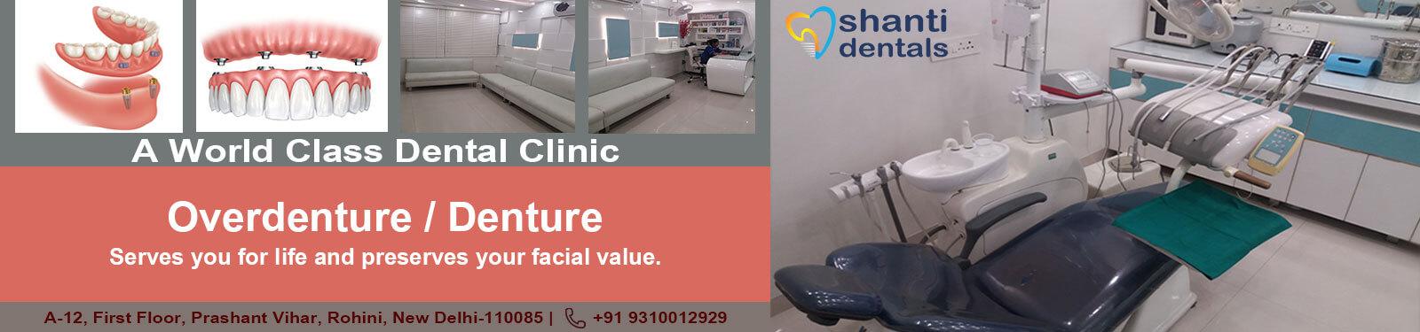 Overdenture Care in Rohini Delhi by Shanti Dentals