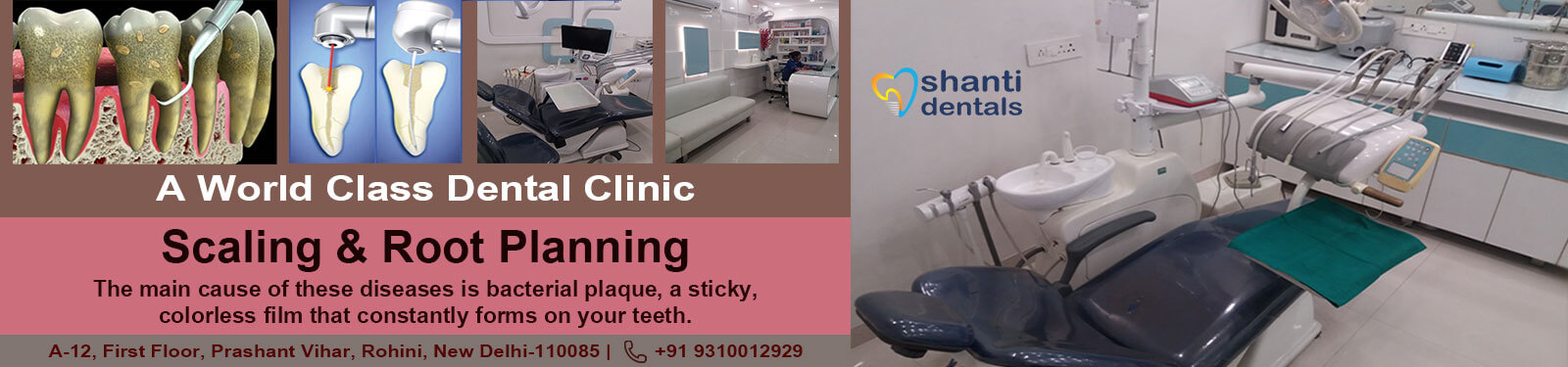 Scaling & Root Planning Treatment in Rohini Delhi by Shanti Dentals